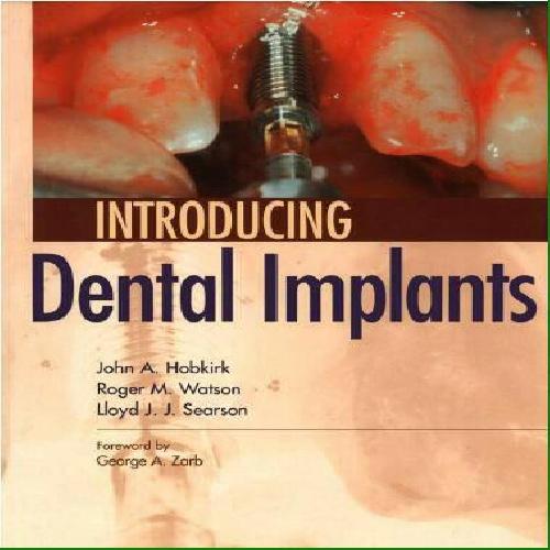 دانلود Introducing Dental Implants