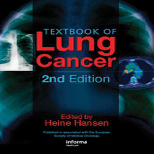 دانلود کتاب Textbook of Lung Cancer